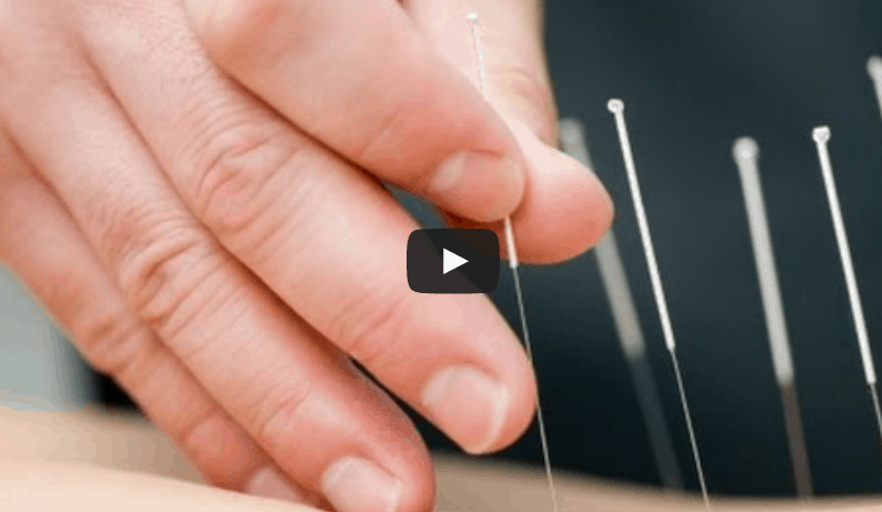 BBC Documentary – The Science of Acupuncture